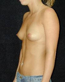 2_breast_before